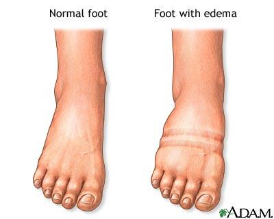 Went to the doctors with swollen ankle and foot. He said it wasn't anything but I had strangulated op for hernia 3wk?