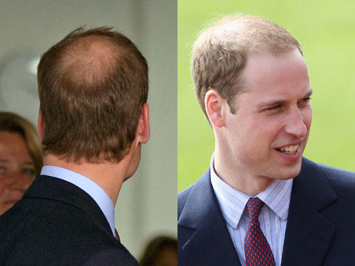 While stress/thyroid/vitamin deficiency can cause hair loss, is hair loss around the crown of the head normal?