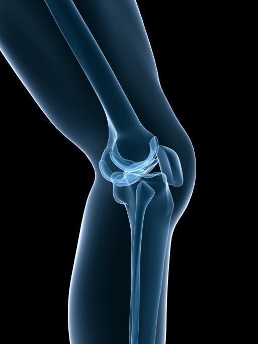 Knee pain and stiffness in joints...My aunt  has very serious knee pain and hard friction in her knees due to lack in synovial fluids, please advice.?