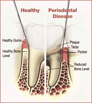 Is it possible to have both gingivitis and bone loss?