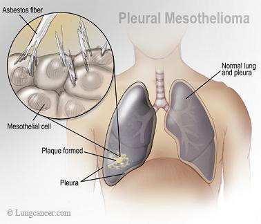 What is the chance of getting mesothelioma when exposed to asbestos?