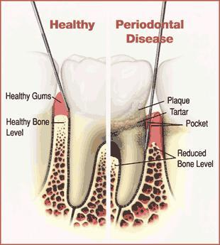 How long does periodontitis take before resulting in tooth loss?