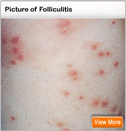 Pimples on the chest and back? What is this? Dangeruos?