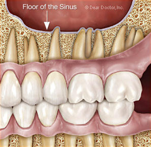 Can sinus pressure cause lower tooth and jaw pain?