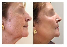 Is alpha beta peel can fade away the dark spot cause of liquid nitrogen, sun damaged & hyperpigmentation?