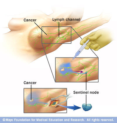 What is the definition or description of: sentinel node biopsy?