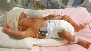 What challenges do premature babies face?