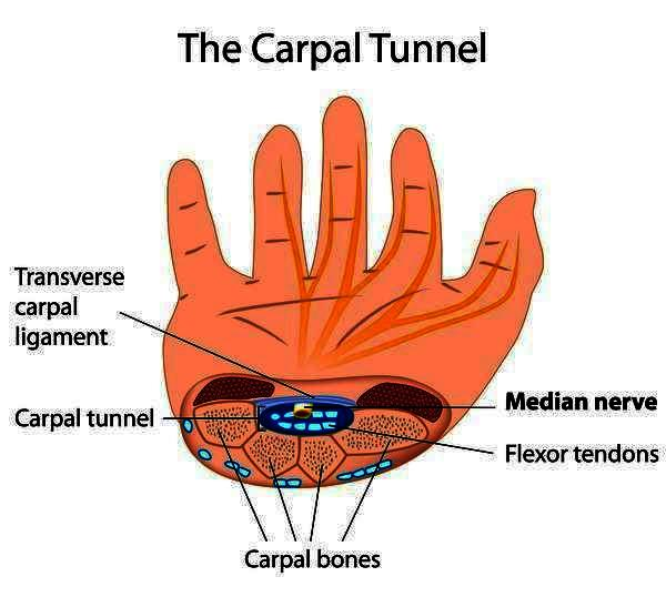 Is the carpal tunnel surgery a risky thing to do?