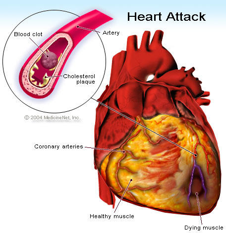 My mom had 2 attacks in 2 years. Now she has cardiomegaly, water in lungs. She was 7days in hosp. We took discharge&removed diuretic. She died in 5 hrs. Why?