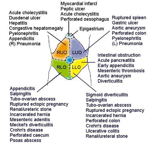 Is Chronic Upper Left Quadrant Pain A......cancer