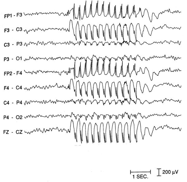 Does an EEG show seizures or just the brain waves?