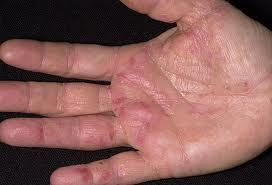 Why would both of my dads hands be itchin really bad?