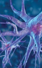 Could strong antipsychotics cause neurons damage and result in demyelinating disease?