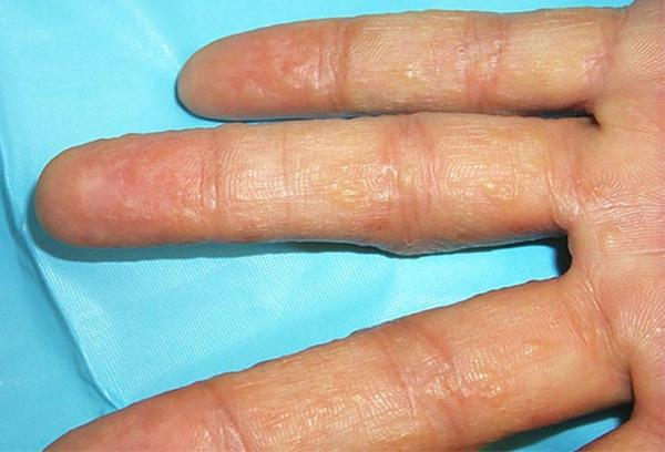 Small Blisters On Fingers And Hands - Doctor answers on ...