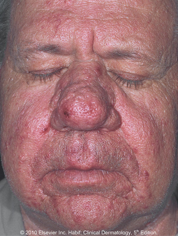 What is drinker's nose? | Reference.com