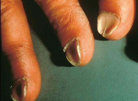Can anemia cause concave nails?