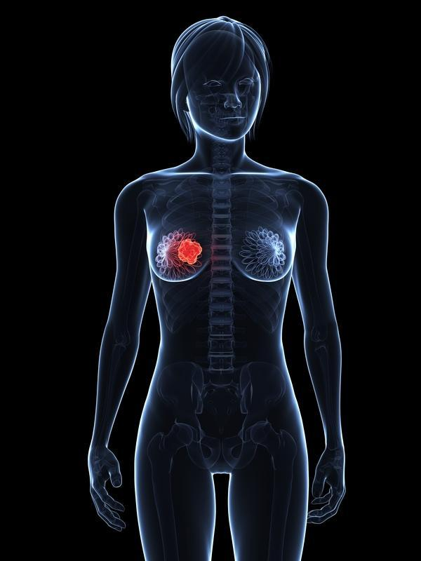 What are the symptoms of breast cancer besides lumps?