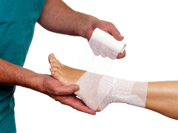If smptoms of a sprain aren't getting better but worse. When should you see your doctor? And what could it be if it has gotten worse?