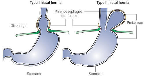 I was diagnosed with a hiatal hernia about 7 years ago. A doctor showed me how to push it back.  For a week i'm  having a cramping pain to the r of it?