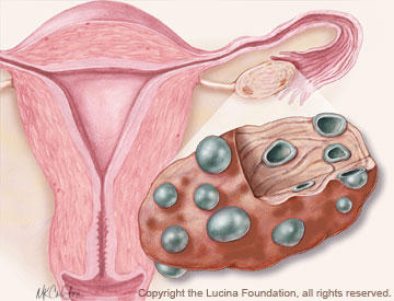 What is the definition or description of: polycystic ovarian syndrome?