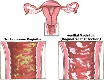 What is the infection called when a woman has a vaginal yeast infection, what causes this and what is the best treatment.?