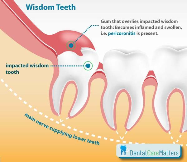 How do I alleviate wisdom teeth pain?