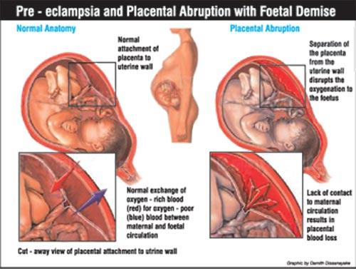 Symptoms of pre-eclampsia and how serious it is in pregnancy?