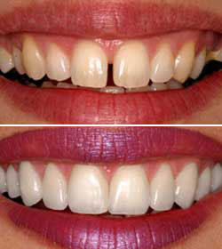 cosmetic dentistry - Dr. John Comisi's insights on HealthTap