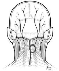 What are possible treatments for unilateral occipital neuralgia when combined with very tight muscles all over?