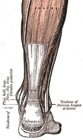 What are remedies to alleviating Achilles tendinitis?