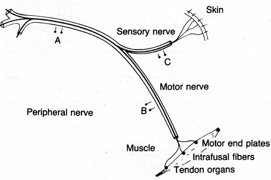 Why would a peripheral nerve injury cause loss of both sensory and motor functions?
