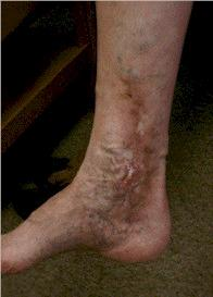 Are varicose veins a health risk or just a cosmetic issue?