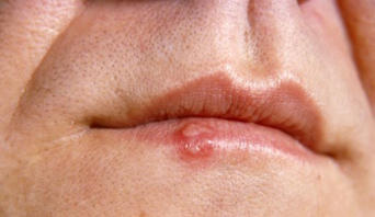 If someone with a cold sore talks over your food, possibly spitting in it mistakenly can u catch the cold sore?