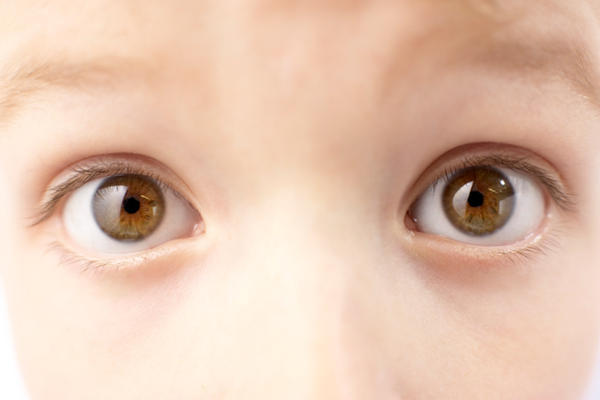 What does it mean to have prominent eyes?