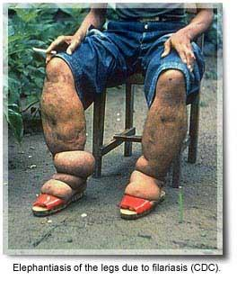 What is the definition or description of: filariasis?