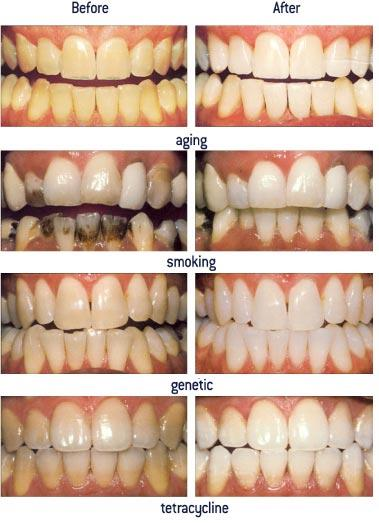 Can food build up on back of tongue lead to discolored teeth?