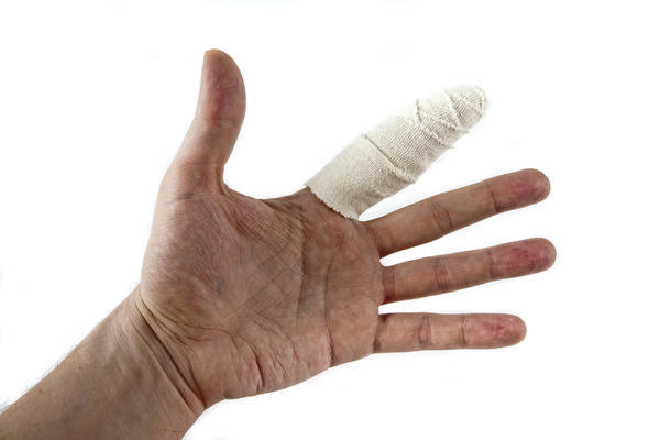 What are signs that I have a broken hand?