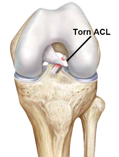 What does it mean to have a torn ACL injury?