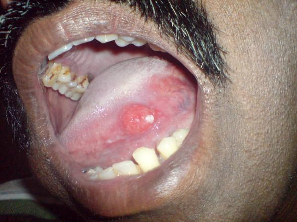 White Coating On Throat 85