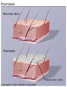 Will psoriasis get worse if left untreated after 30 years ?