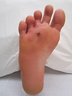 Hello doctori had a foot infection from a puncture wound. I took a course of dalacin c but the wound is still sore and I have a rash on my palms and feet. What should I do?