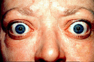 What are the symptoms of thyroid eye disease?