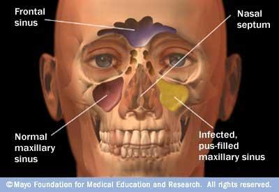What are some treatments for sinus problems?