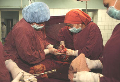 Will a c-section be necessary if one twin is in the transverse position?