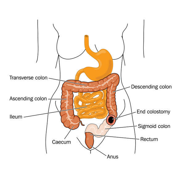 What should I expect after a colostomy?