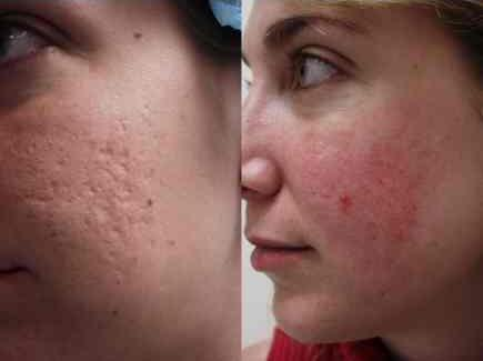 What is one way of getting rid of pimple scars?