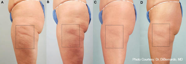 What is the best cellulite treatment?