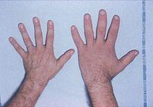 What is the disease that causes someone to have abnormally large hands and feet?