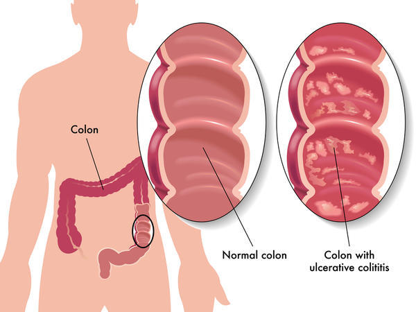 Can ulcerative colitis be treated with alternative medecine?