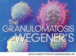 How long can wegeners go undiagnosed?  Can a patirnt have vague symptoms (still be able to funcion) for months before a diagnosis is made?